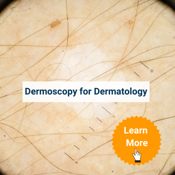 dermoscopy_dermatology